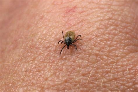 tick diseases expert warns of new tick borne disease uconn today