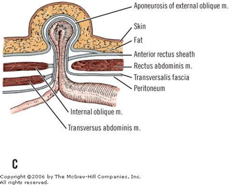 c section incisional hernia symptoms image gallery spigelian hernia