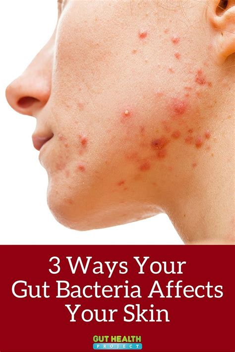 7 Ways In Which Affects Your by 3 Ways Your Gut Bacteria Affects Your Skin Gut Bacteria