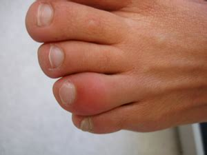 swollen toe whac a mole physical therapy meet ankylosing spondylitis