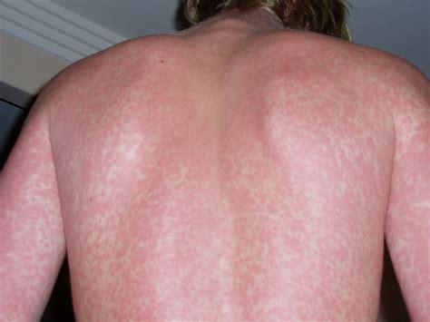 itchy rash healthtipsandguides net