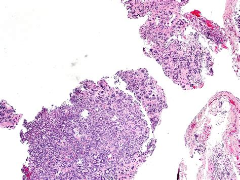 Hmb 45 Pathology Outlines by Anabible Dr Michels Carcinome 233 Pith 233 Lial Myo 233 Pith 233 Lial Impression