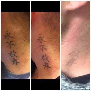 fade away tattoo removal laser removal st removal
