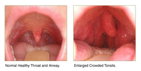 Tongsis Normal normal tonsils vs swollen tonsils quotes