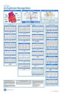 dysrhythmia cheat sheet arrhythmia recognition acls