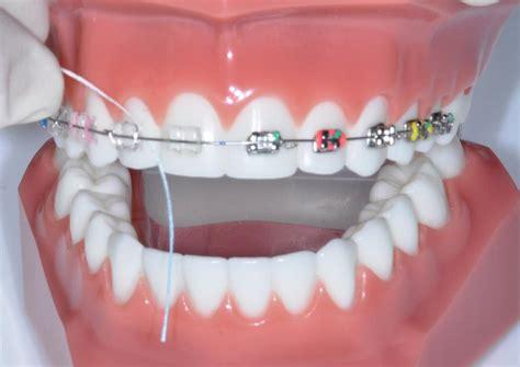 apparecchio interno denti l apparecchio ortodontico pu 242 favorire la carie