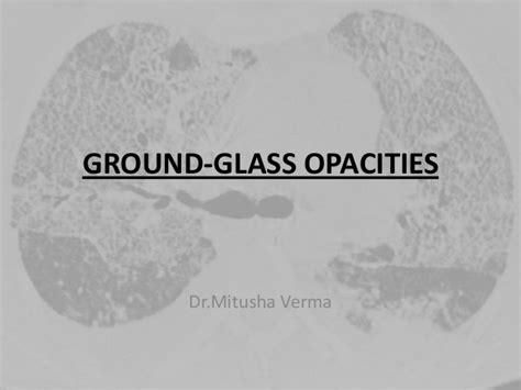 mosaic pattern ground glass opacity hrct chest ground glass opacities