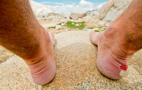 best way to heal blisters on the fastest way to heal a blister s health