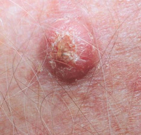 cancer symptoms pictures info skin cancer symptoms
