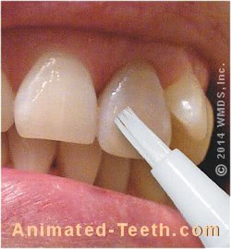 teeth whitening pens brush  whiteners proscons