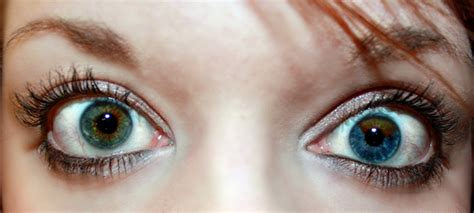two different colored meaning eye color iris
