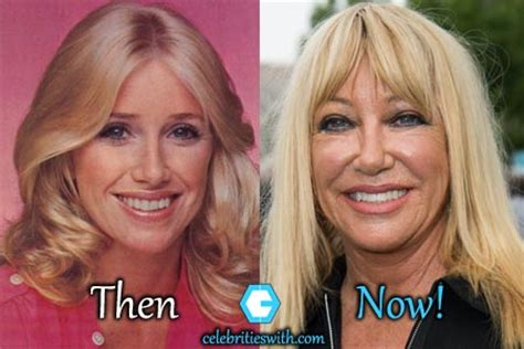 suzanne somers celebrity plastic surgery 24 suzanne somers plastic surgery facelift boob job before