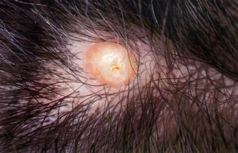 yellow puss filled ingrown hair ingrown hair pus filled ingrown hair on scalp head causes