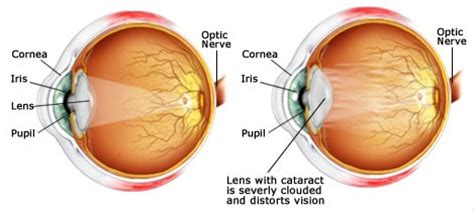 cataracts causes treatment methods and ways to prevent