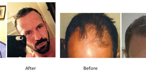 new hair transplant new hair transplant office in the keys florida