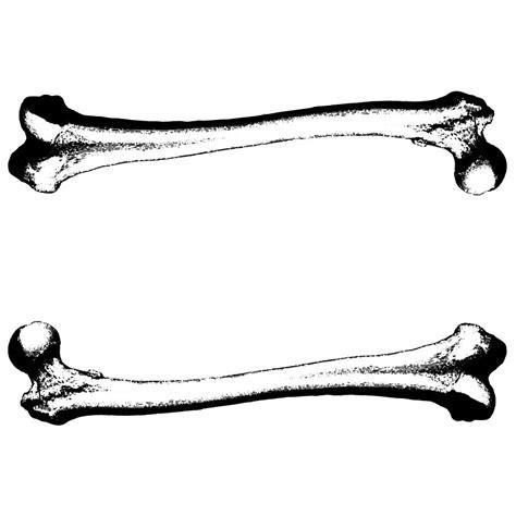 bone clipart bone frractures clipart clipart suggest