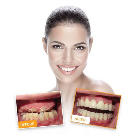 best dentists best dentists croatia dental center ostojić