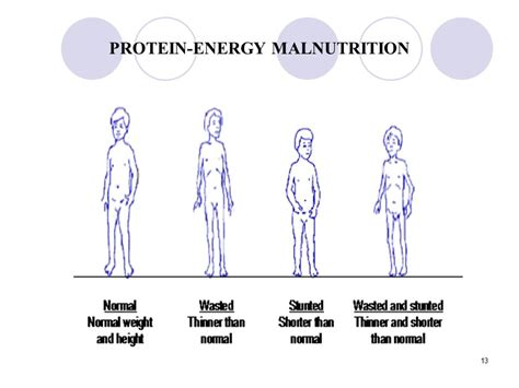 protein energy malnutrition who report on protein energy malnutrition primus green