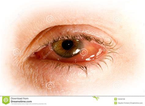 imagenes ojos con conjuntivitis ojo enfermo con conjuntivitis foto de archivo imagen