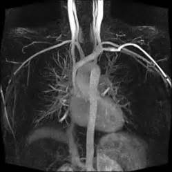 Three Dimensional Contrast Enhanced Mr Angiography Of Aortic Dissection A Pictorial Essay by Twist Siemens Healthcare Global