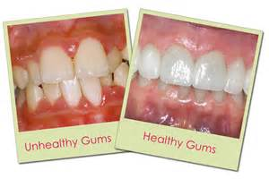 treatments for teeth dr gurs sehmi