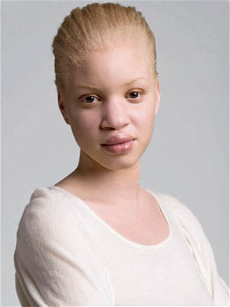 white african american albinos in africa