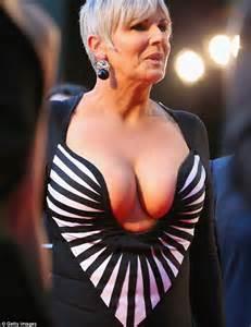 Susie Essman Leaked Nude Photo
