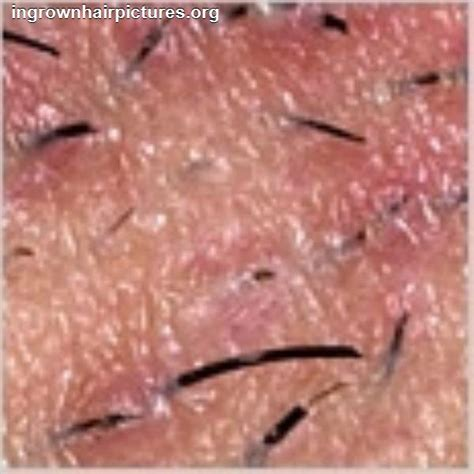 photos of viginal hair ingrown hair on vagina sex porn images