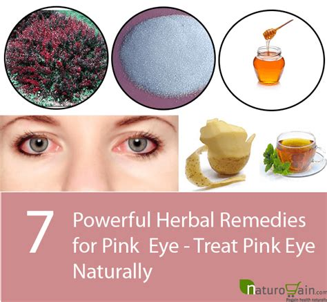 7 powerful herbal remedies for pink eye treat pink eye