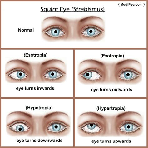 squinting one eye do you about the strabismus here s what to do