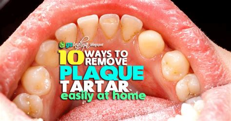 10 easy ways to remove plaque and tartar from teeth at