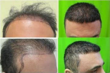 best hairtransplant in the world finding the best hair restoration clinic in the world dermhair clinic