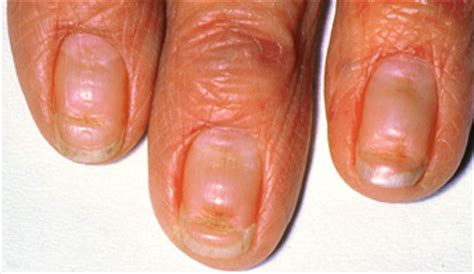 dent in nail bed nail abnormalities nhs choices