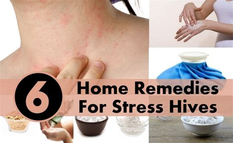 6 home remedies for stress hives diy health remedy