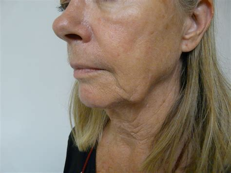 earring style for sagging jawline radiesse for jowls glendale and malibu
