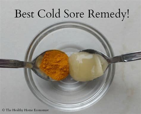 effective home remedies for cold sores fever blisters