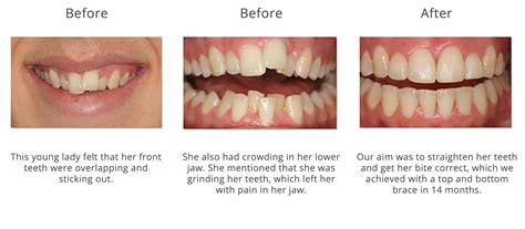 teeth straightening fareham child braces