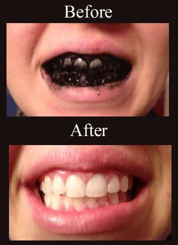 whiten teeth  charcoal wellness mama
