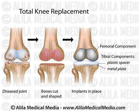 total knee replacement diagram alila media total knee replacement surgery