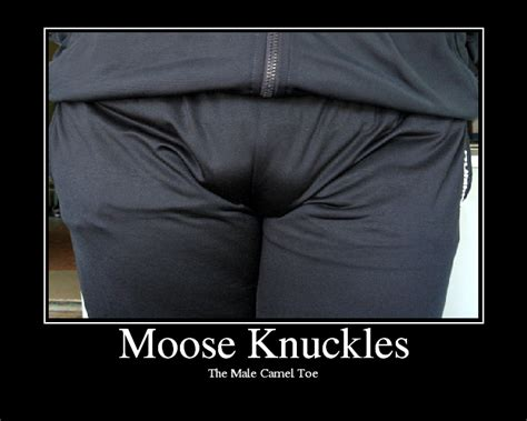 Moose Knuckle Meme - moose knuckles annoyances