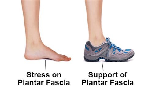 plantar fasciitis minimalist shoes best shoes for plantar fasciitis the smart buyer s guide
