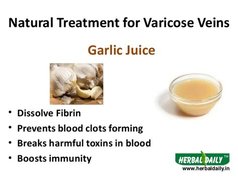 Blood Clots During Detox by Treatment For Varicose Veins In Iव र क स