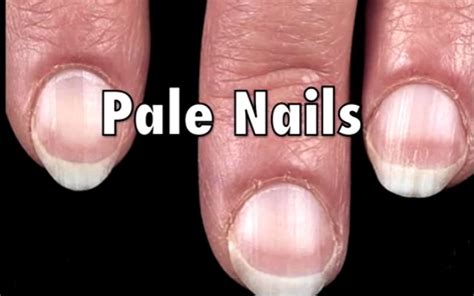 pale nail beds 9 fingernail signs that may indicate health issues