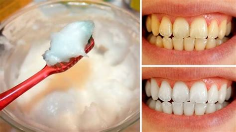 salt  white  teeth quora