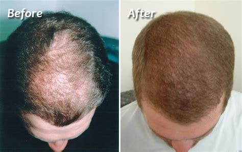 faq main hair loss hair transplant and restoration hair restoration hair transplant costhetics