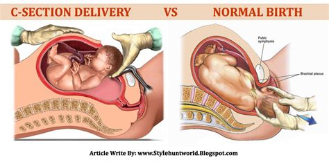 Vs C Section the home of the twisted ladybug things noone tells you about giving birth