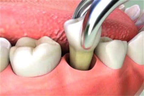 tooth extraction cost average cost for tooth extraction utodent