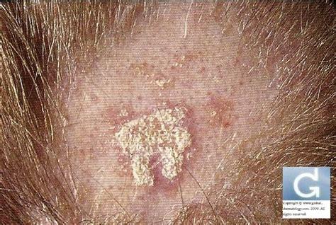 schuppen kopfhaut ursache entz 252 ndliche erkrankungen der kopfhaut 171 globale