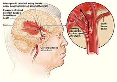 emorragia interna hemorragia interna la enciclopedia libre