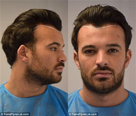celebrity hair transplants before after celebrity before and after hair transplant pictures to pin